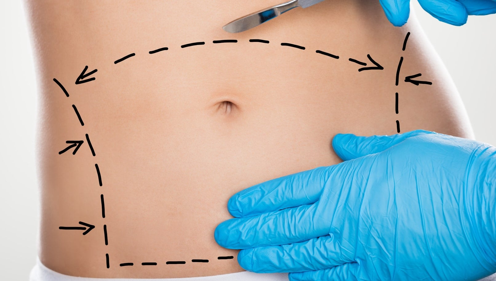 What is abdominoplasty