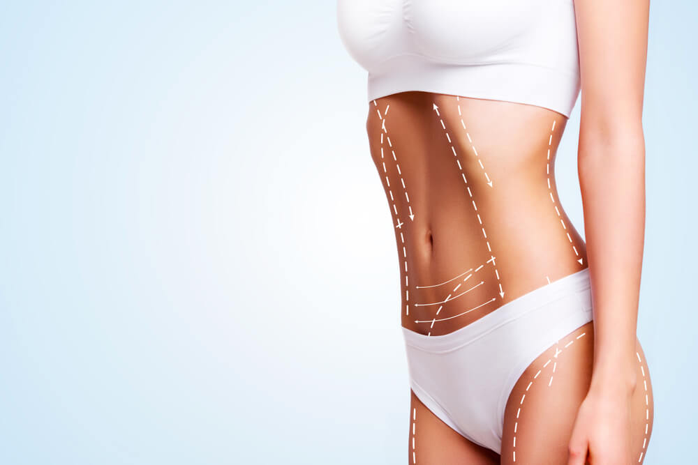 Who is qualified to do liposuction