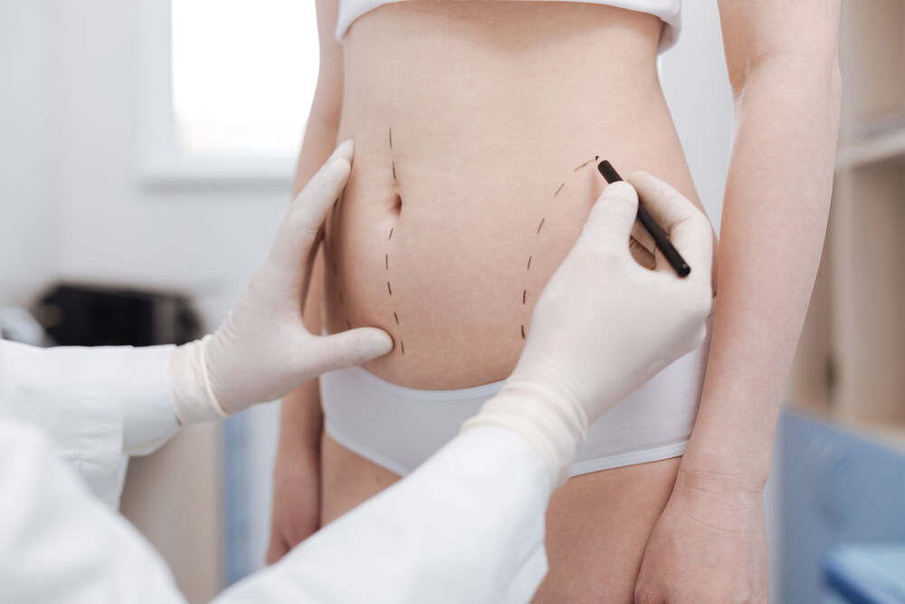 liposuction is different from lipomatic
