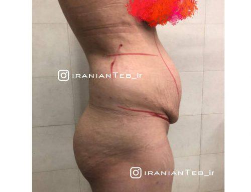نمونه کار قبل و بعد از عمل ابدومینوپلاستی و تزریق چربی به باسن