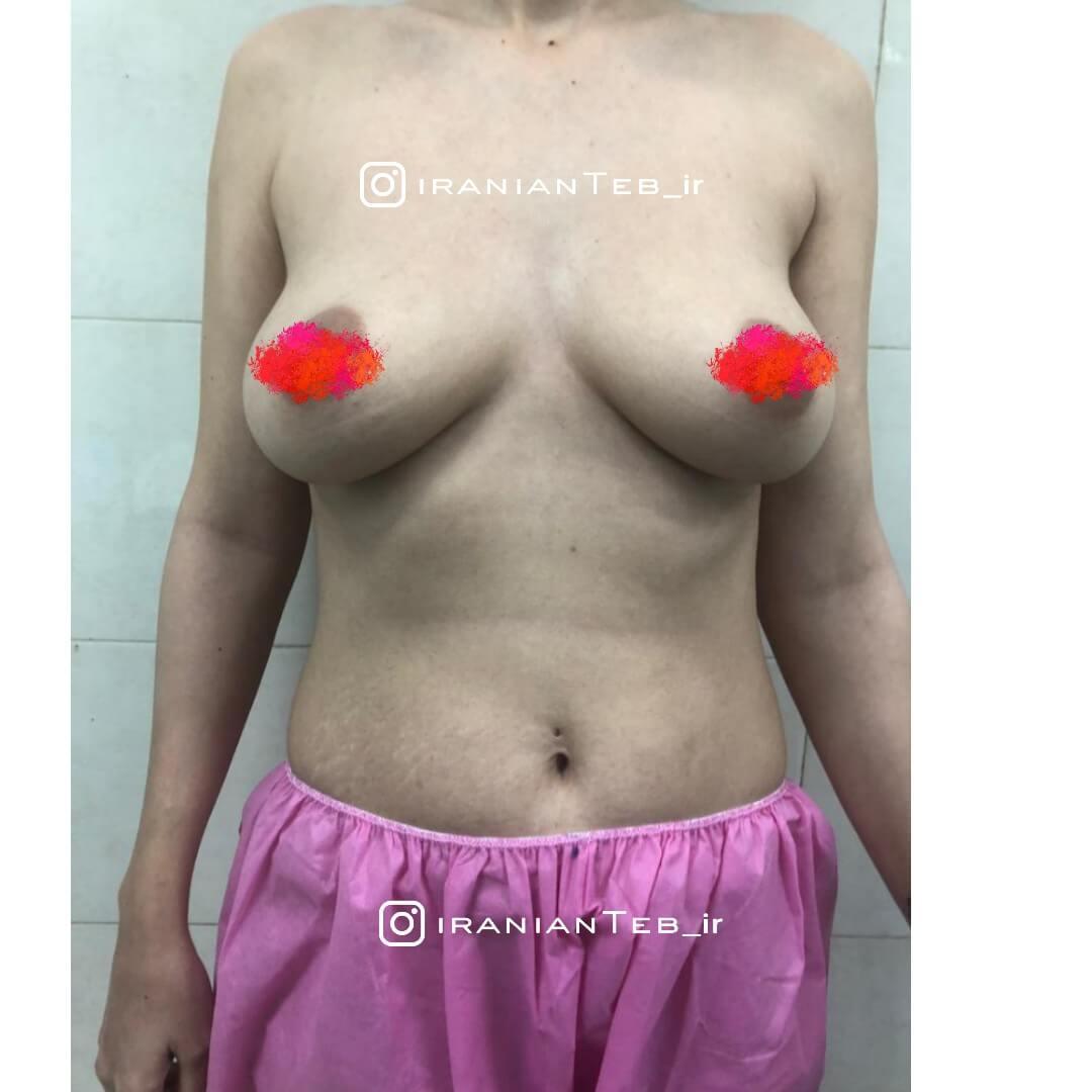 قبل از عمل پروتز سینه