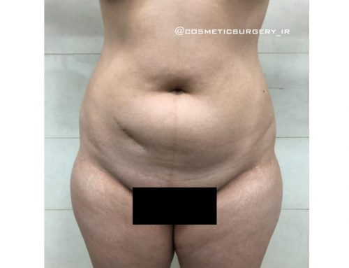 نمونه کار قبل و بعد از عمل لیپوماتیک