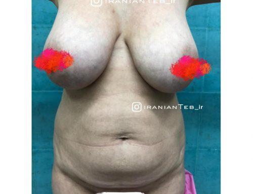 نمونه کار قبل و بعد از عمل ابدومینوپلاستی  و لیفت سینه