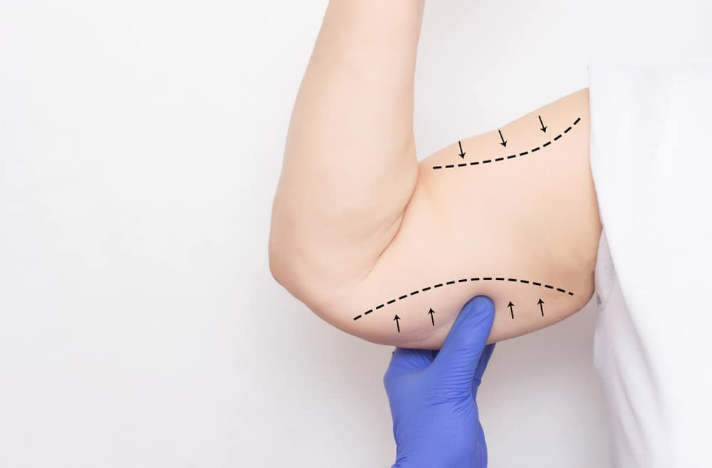 Who is a qualified surgeon for an arm lift